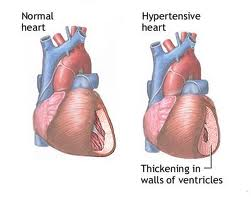 normal heart & hypertensive heart