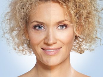 How to Get rid of Deep Wrinkles Naturally