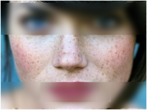 Freckles home remedies