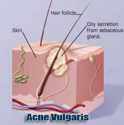 acne vulgaris or pimple