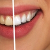 Make Your Teeth White and Beautiful
