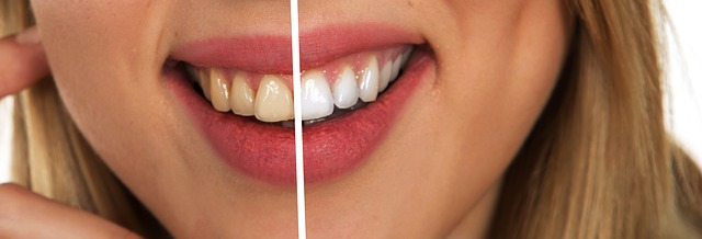 Ways to Get a Perfect Smile