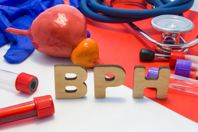 Benign Prostatic Hyperplasia or BPH
