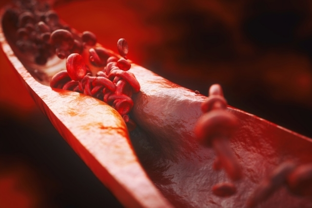 Popularity of Generic Drugs Poised to Overshadow Atherosclerosis Drugs Market Growth