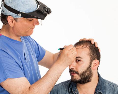 Latest Developments in Hair Transplant Technology