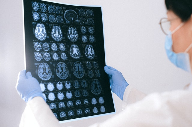 Vectura Signs Pre-Clinical Development Agreement with Incannex to Advance IHL-216A for the Treatment of Traumatic Brain Injury